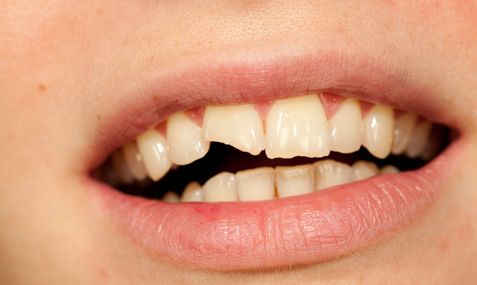 A chipped tooth can be fixed by dental bonding.